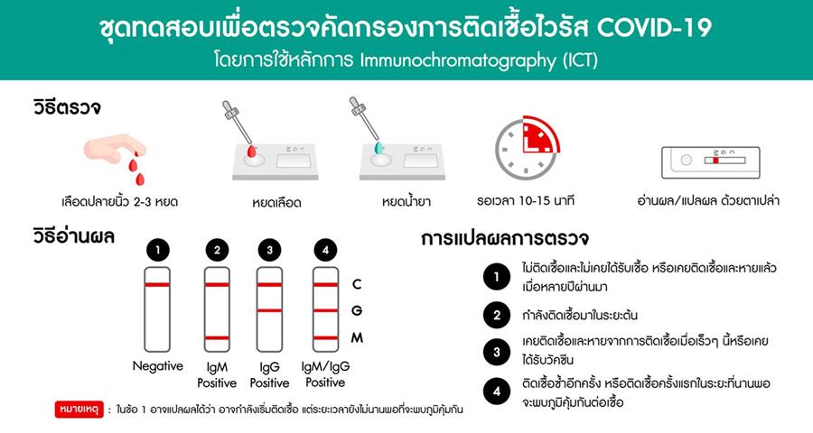 ชุดทดสอบเชื้อโควิด-19